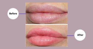 эффект татуажа губ