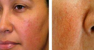 купероз - покраснение кожи лица