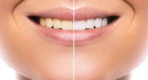 белоснежная улыбка после отбеливания зубов