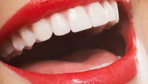 белоснежная улыбка с винирами